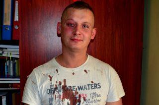 Jeszcze między szpitalem a wytrzeźwiałką dostałem dwa strzały…
