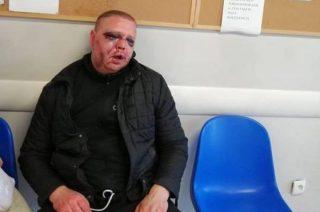 Czy mężczyzna został pobity przez mławskich policjantów? Wyjaśni to prokuratura i BSW